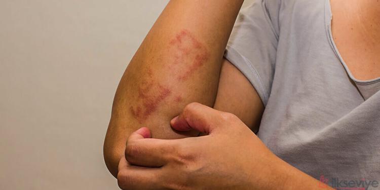 Alerjik Reaksiyon Çeşitleri Ve Belirtileri Nelerdir?