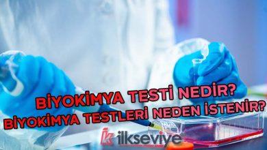 biyokimya testi nedir