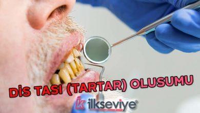 Diş taşı tartar oluşumu neden olur